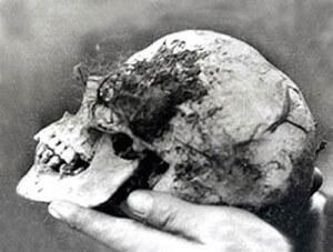 bella_wych_elm_skull